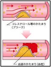 血管壁、血栓